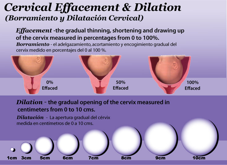 Need help understanding dilation/effacement. I'm confused. : BabyBumps